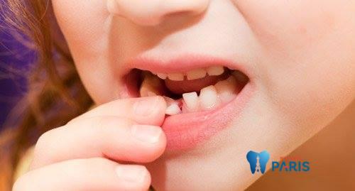 Răng cửa bị lung lay phải làm sao khắc phục nhanh nhất? 1