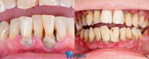 Răng cửa bị lung lay phải làm sao khắc phục nhanh nhất? 2
