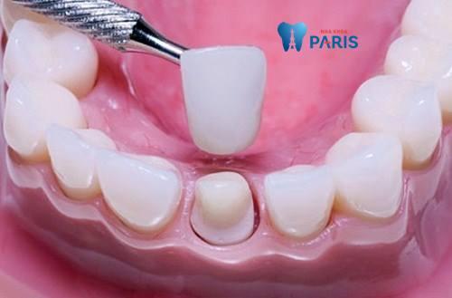 Răng cửa bị lung lay phải làm sao khắc phục nhanh nhất? 3