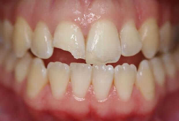 Nguyên nhân răng bị mẻ 1