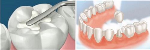 Nguyên nhân răng bị mẻ 2