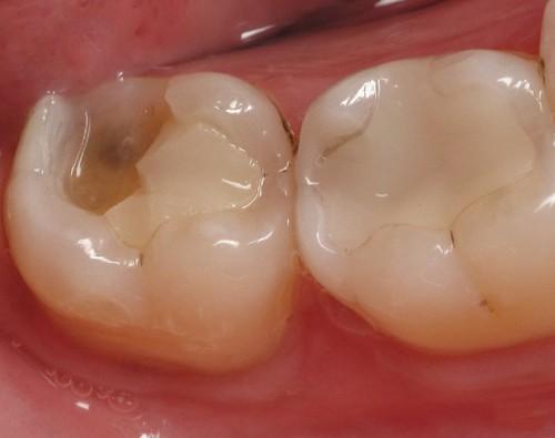 Tìm hiểu nguyên nhân và cách khắc phục khi bị sứt răng hàm