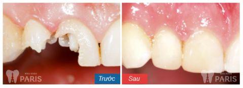 Mức giá bọc răng sứ Emax tốt nhất là bao nhiêu? 1