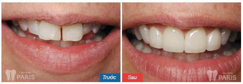 Răng sứ không kim loại có tốt không 2