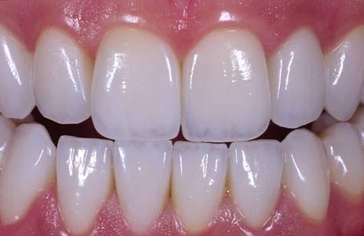 Bọc răng sứ 2 hàm 1