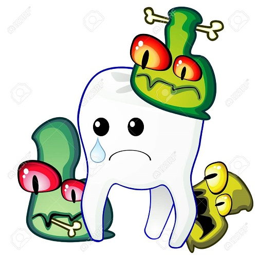 Bọc răng sứ bị sâu - Nguyên nhân và cách khắc phục Triệt Để nhất 1