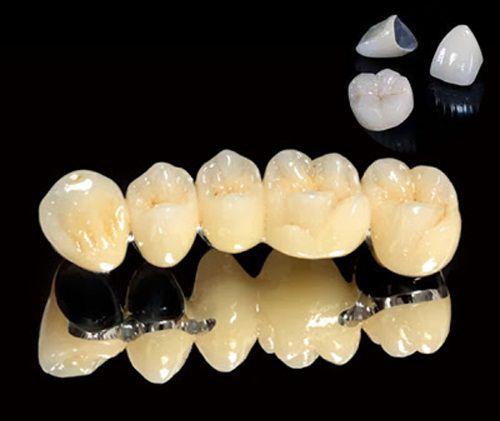 Bọc răng sứ Titan 1