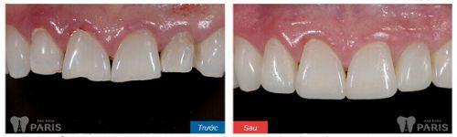 Bác sỹ giải đáp: Cụ thể các bước trong quy trình bọc răng sứ Cercon 5