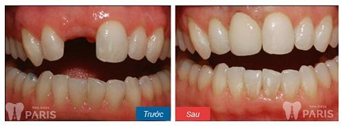 Bác sỹ giải đáp: Cụ thể các bước trong quy trình bọc răng sứ Cercon 6