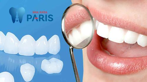 Bác sỹ giải đáp: Cụ thể các bước trong quy trình bọc răng sứ Cercon 1