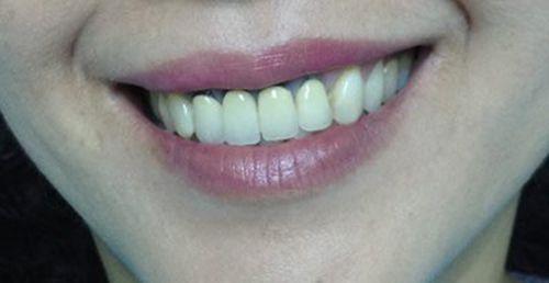 Bọc răng sứ bị đen chân răng – Nguyên nhân và cách khắc phục