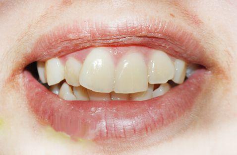 Bị lệch răng cửa phải làm sao để khắc phục hiệu quả? 1