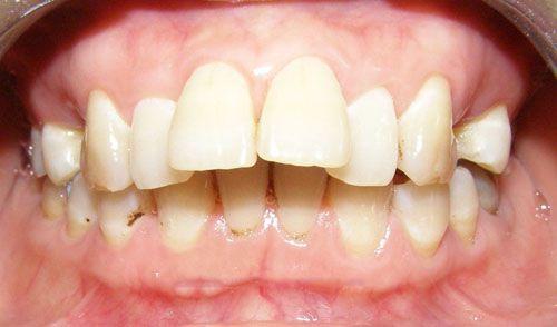 Cách chỉnh 2 răng cửa bị hô 1