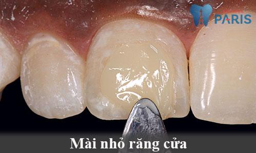 Mài nhỏ răng cửa 1