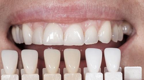 Tác dụng của bọc răng sứ 1