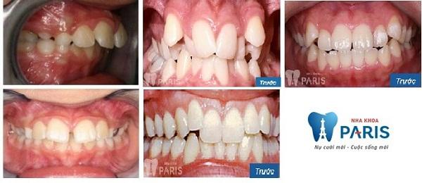 Bọc răng sứ hay niềng răng - Phương pháp nào tối ưu với bạn nhất? 2