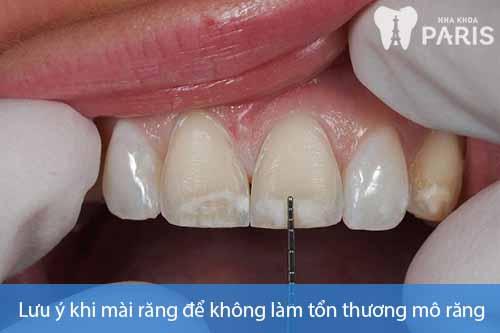 Bọc răng sứ có phải mài răng không? [Chuyên gia giải đáp] 2
