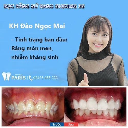 Có nên bọc răng sứ không? Bật mí 10 LỢI ÍCH của bọc răng sứ 3