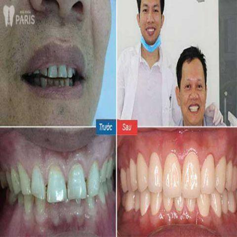 Bọc răng sứ giá bao nhiêu tiền? Bảng giá làm răng sứ Ưu Đãi 2018 5