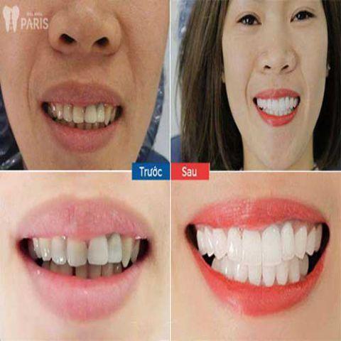 Bọc răng sứ giá bao nhiêu tiền? Bảng giá làm răng sứ Ưu Đãi 2018 4