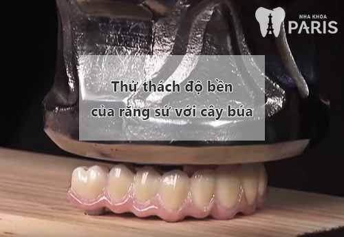 Có nên bọc răng sứ không? Bật mí 10 LỢI ÍCH của bọc răng sứ 2