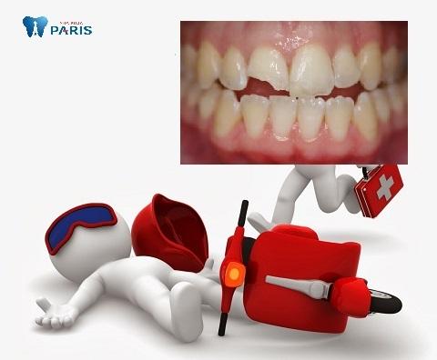 Nguyên nhân răng bị mẻ có thể do tai nạn, chấn thương, nhai cắn quá mạnh.