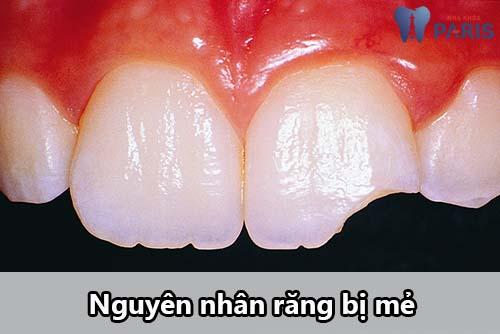 Nguyên nhân răng bị mẻ và cách khắc phục Hiệu Quả 100% 1