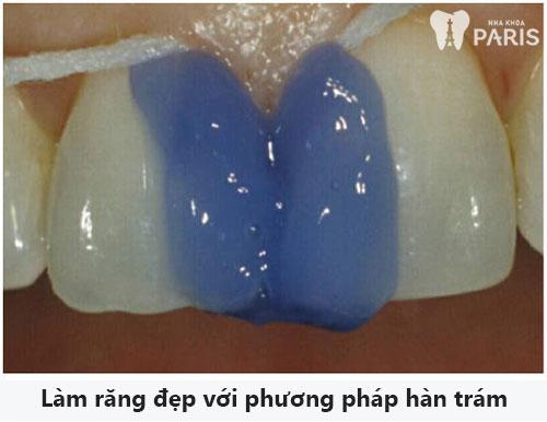 Tiết lộ 4 cách làm răng đều đẹp HIỆU QUẢ nhất hiện nay 2