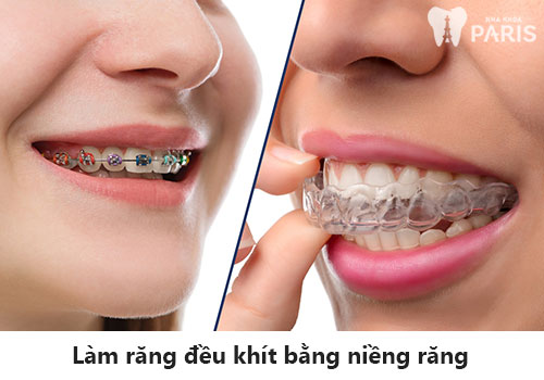 Tiết lộ 4 cách làm răng đều đẹp HIỆU QUẢ nhất hiện nay 3