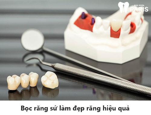 Tiết lộ 4 cách làm răng đều đẹp HIỆU QUẢ nhất hiện nay 4