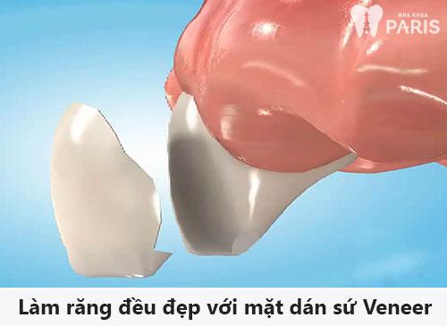 Tiết lộ 4 cách làm răng đều đẹp HIỆU QUẢ nhất hiện nay 5