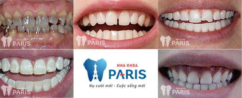 Mặt dán Veneer sứ - Bí mật của hàm răng hoàn hảo 2