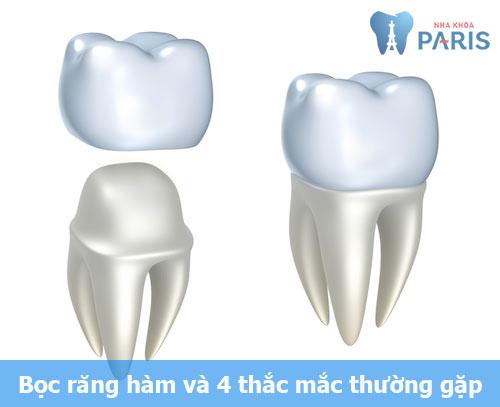 Bọc răng hàm 1