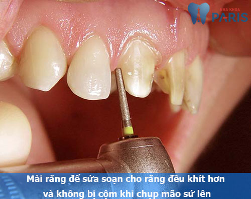 Bọc răng hàm 2
