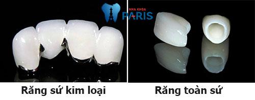 Bọc răng hàm 3