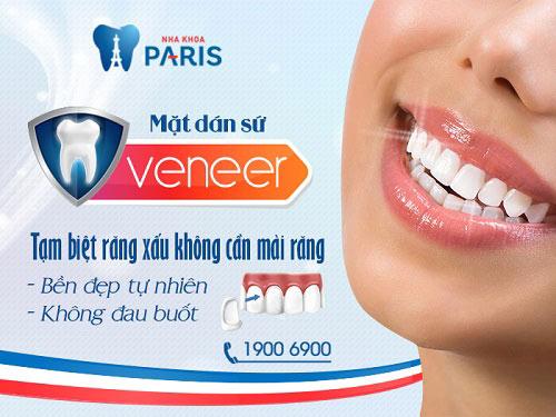 Mặt dán Veneer sứ - Bí mật của hàm răng hoàn hảo 1