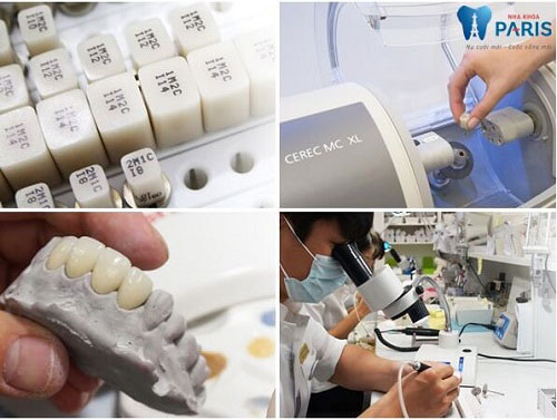 Bọc răng sứ kim loại đẹp tự nhiên 3