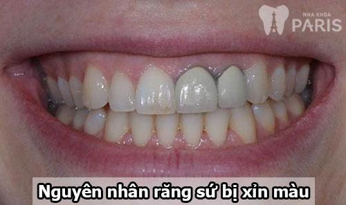 Có cách làm trắng răng sứ nào hiệu quả không?【BS Tư Vấn】1