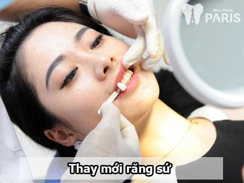 Có cách làm trắng răng sứ nào hiệu quả không?【BS Tư Vấn】3