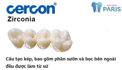 Răng sứ Cercon - Zirconia 1
