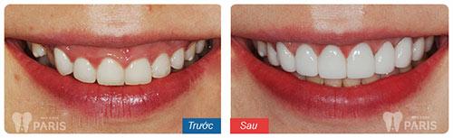 răng sứ Cercon - Zirconia 3