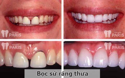 Bọc sứ răng thưa: Có nên không, có TỐT & BỀN không? 1