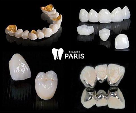 Bọc sứ răng thưa: Có nên không, có TỐT & BỀN không? 2