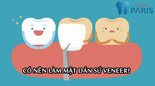 Có nên làm mặt dán sứ Veneer để cho hàm răng ĐỀU & ĐẸP không? 1