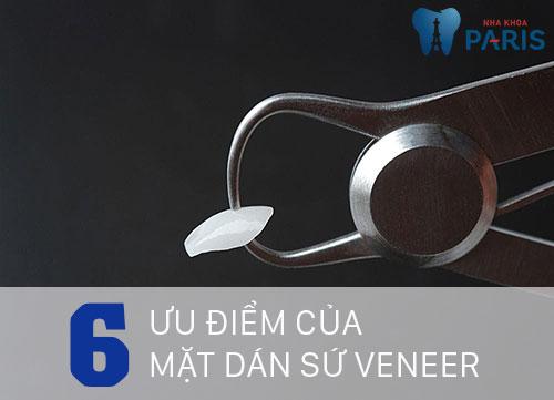 Có nên làm mặt dán sứ Veneer để cho hàm răng ĐỀU & ĐẸP không? 2