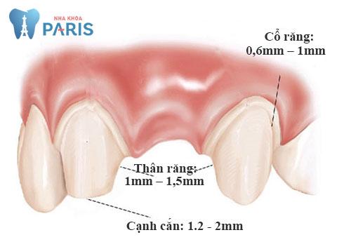 Mài răng cửa bọc răng sứ có ĐAU không, ẢNH HƯỞNG gì không? 3