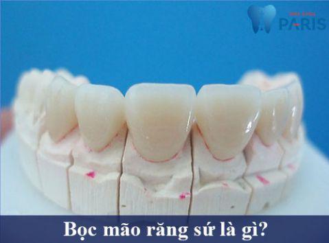 Bọc mão răng sứ là gì?