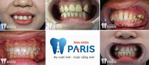 Bọc mão răng sứ là gì & các trường hợp nên áp dụng bọc mão răng