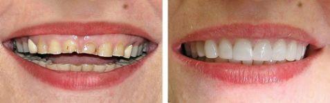 khách hàng bọc mão răng sứ tại nha khoa Paris