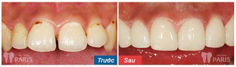 khách hàng bọc mão răng sứ công nghệ nano shining 5s
